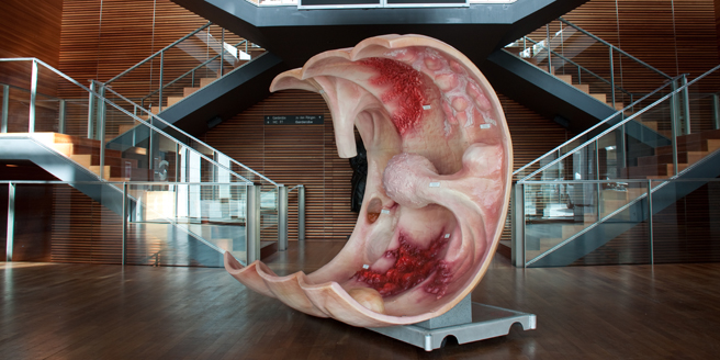 The huge intestine section model