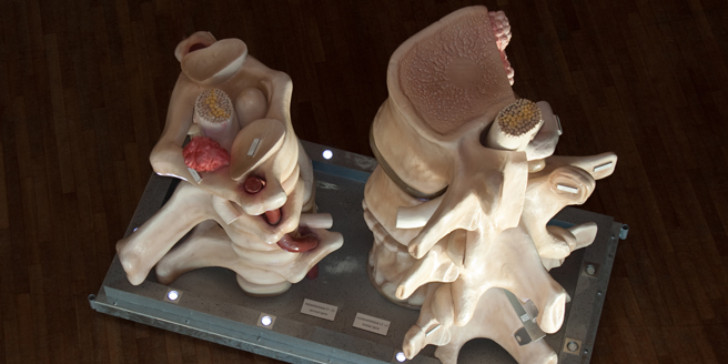 The huge lumbar/cervical vertebra model