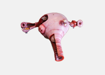 The walk-in uterus model